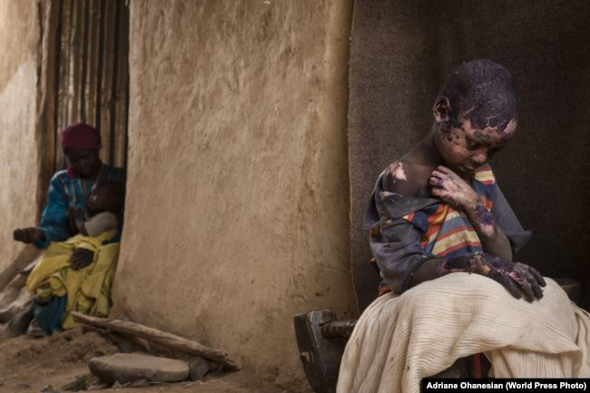 Худшее впереди: COVID бьет по самым бедным странам