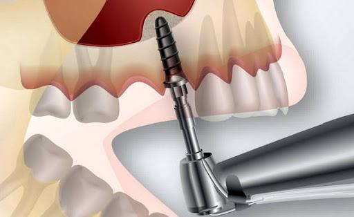 Имплантация зубов в Москве: выбираем оптимальное решение