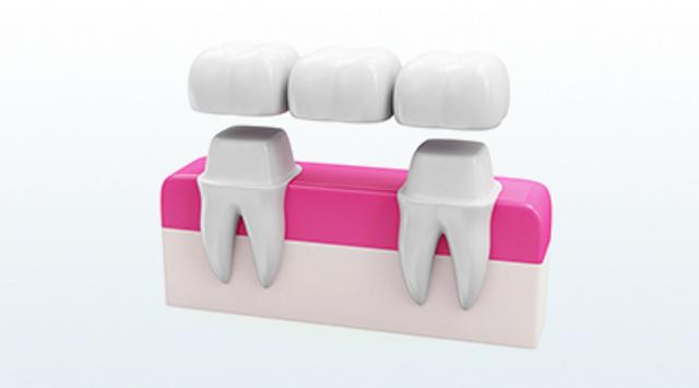 Протезирование зубов: какой вариант лучше выбрать