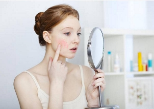 Лечение купероза: как избавиться от красных сеточек на лице