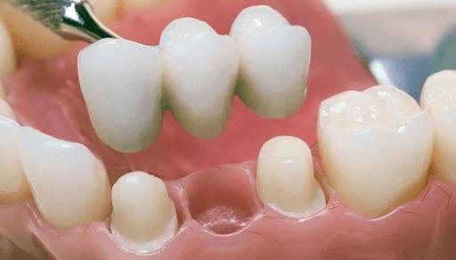Оптимальные виды протезирования зубов для пенсионеров